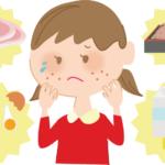 子どものアレルギー対策と症状の改善のカギは【腸内細菌】にある!自宅でできるアレルギー対策とは?